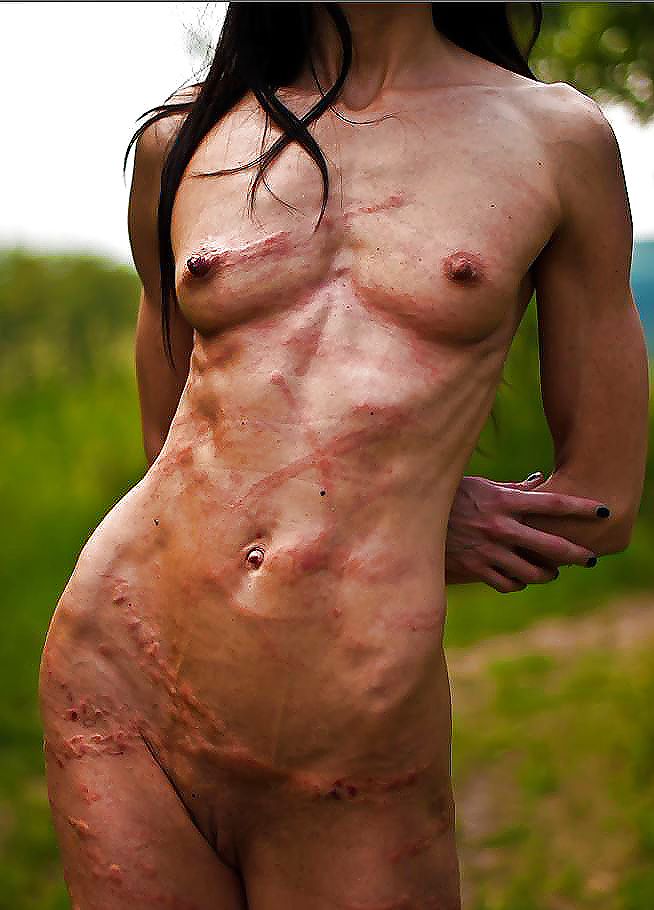 Breast cancer sufferer poses topless to show off her double mastectomy scars