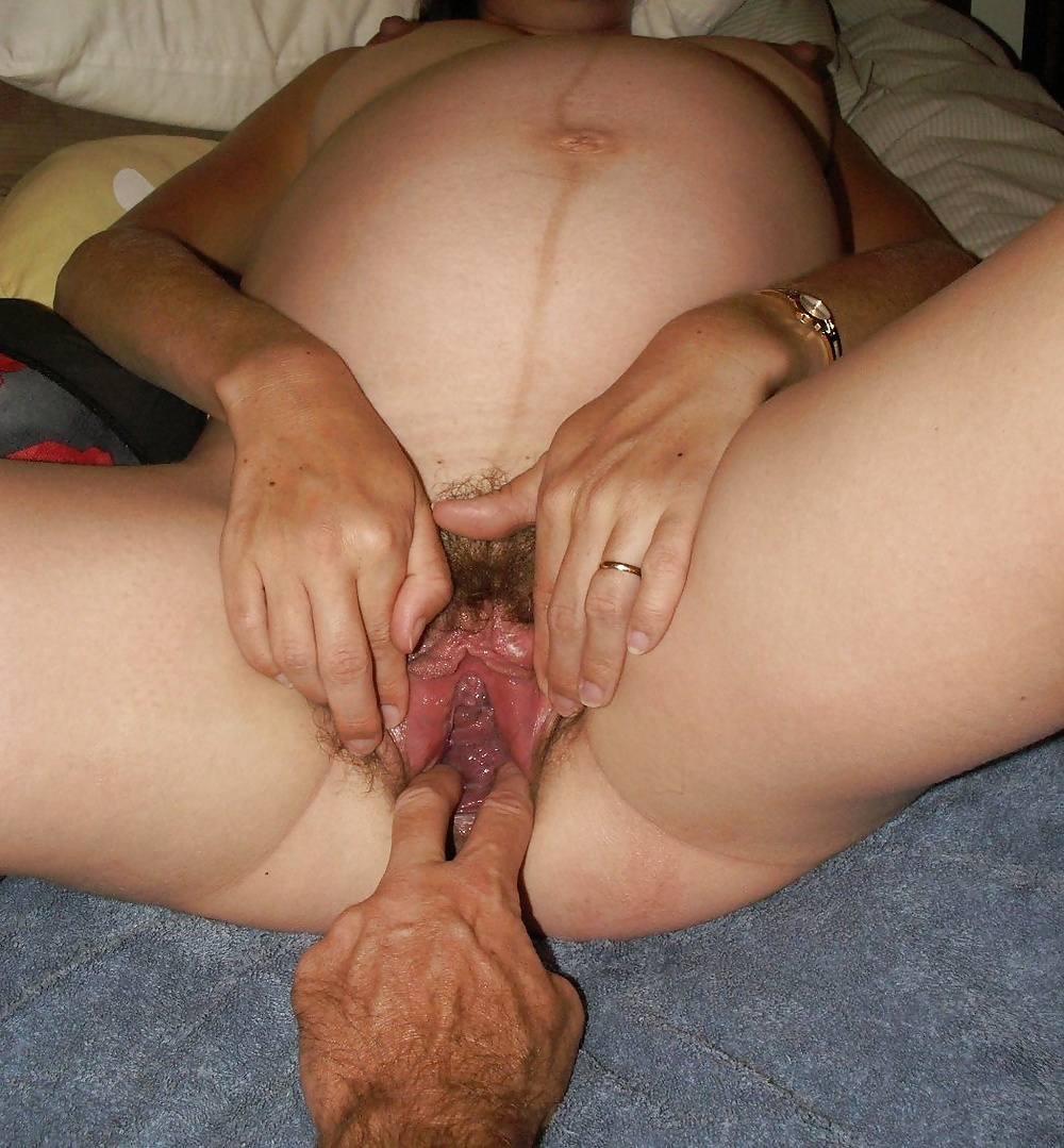 Широкое влагалище после родов него