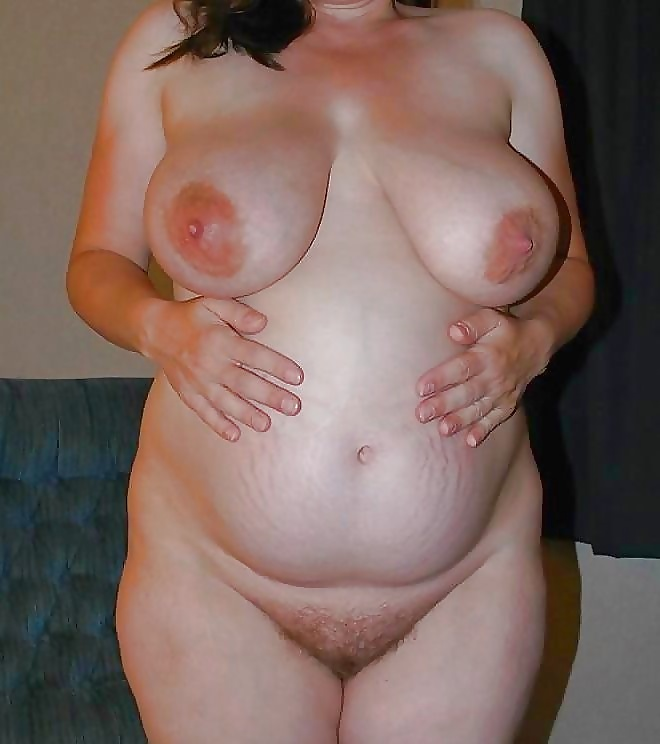 Women With Stretch Marks Xhamster 1