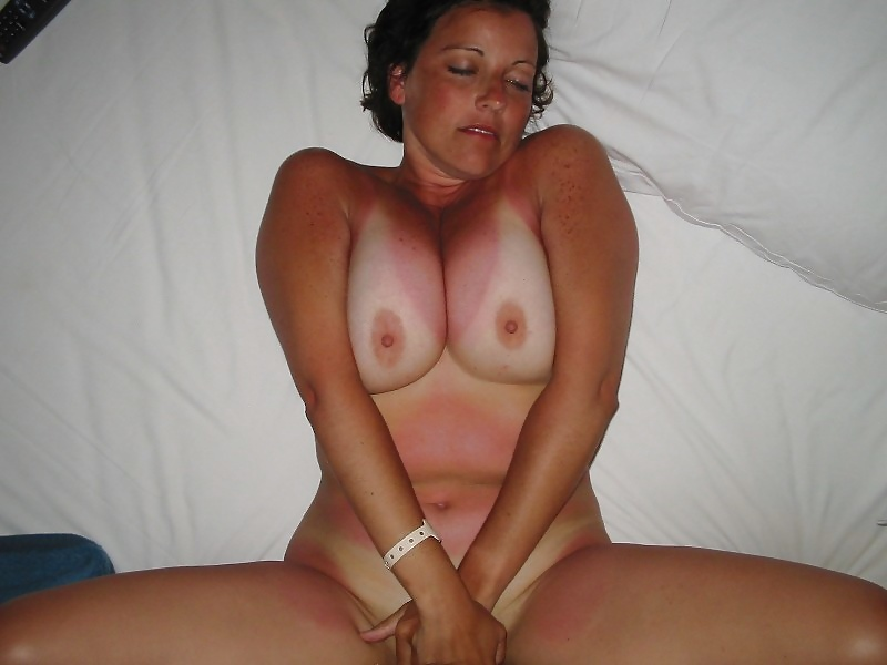 Big sunburn ass in holiday