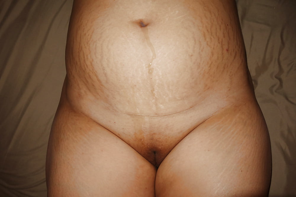 Sexy nude pregnant stretch marks