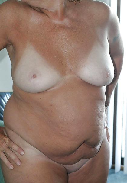 Nude Women With Stretch Marks Pics