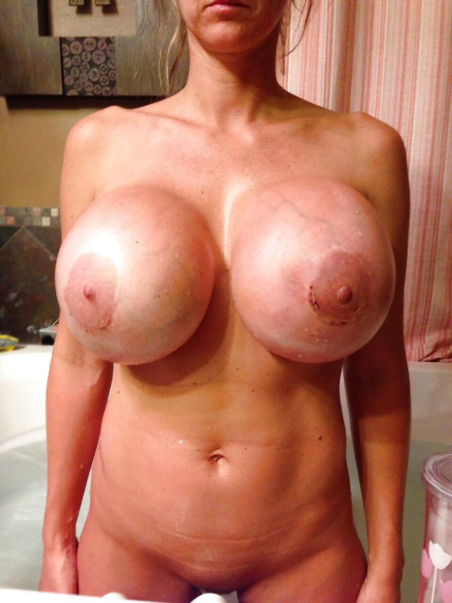 See and save as blue veins on huge silicone enanched boobs porn pict