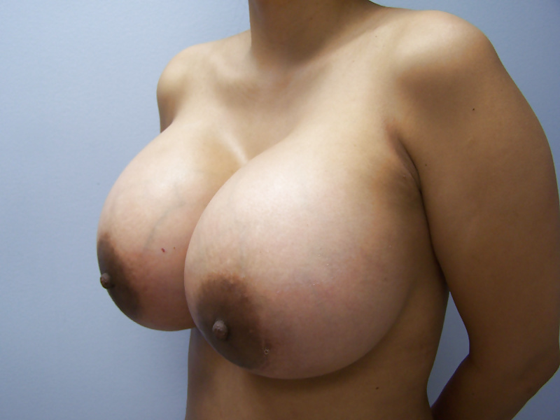 Woman Shows Off Her New Breasts After Doctors Removed Her Four Implants