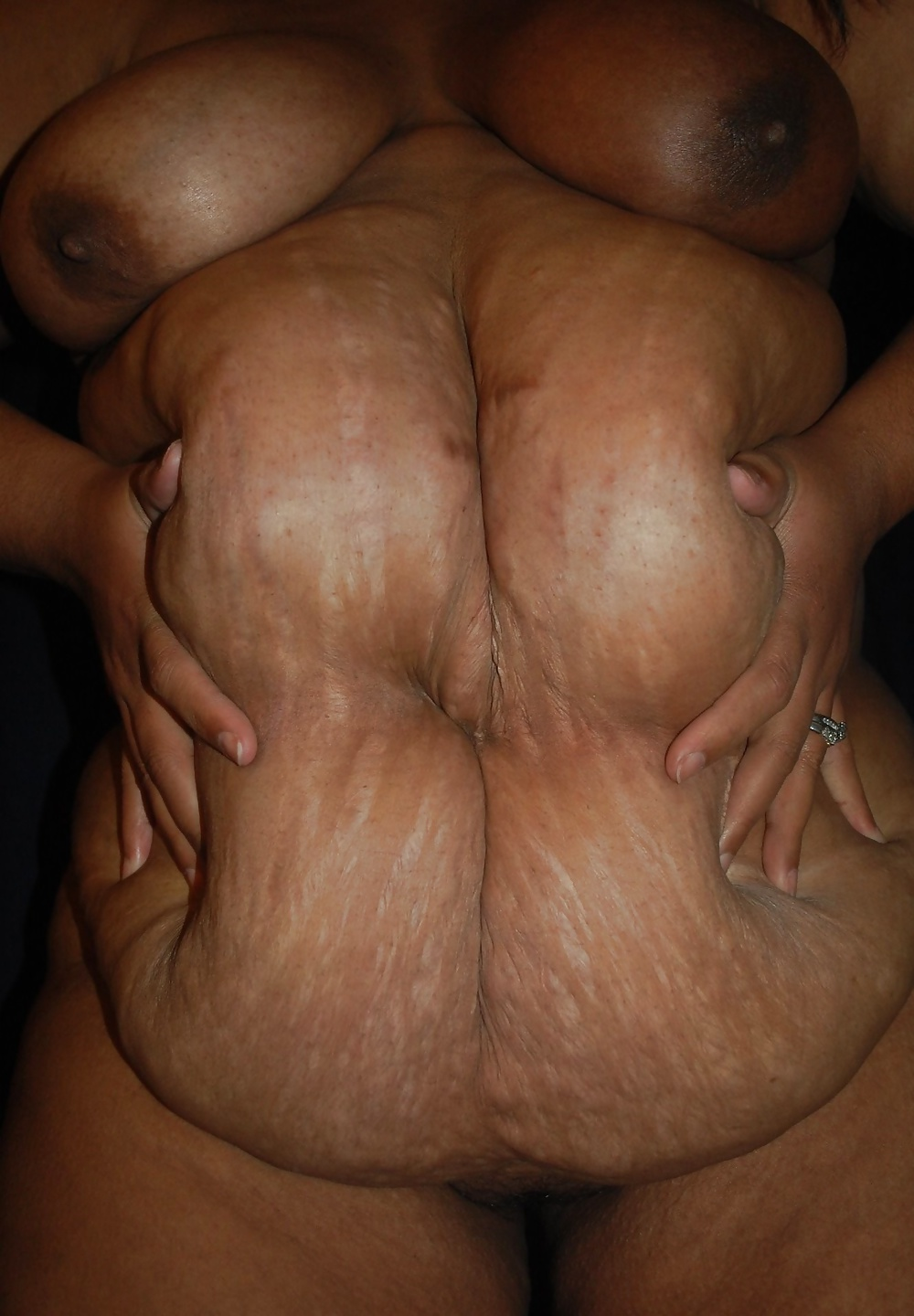Nude girls with stretch marks